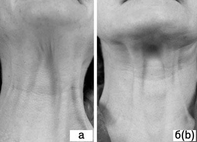 Субментальная пластика в ходе выполнения омолаживающих операций на лице. Рис.1