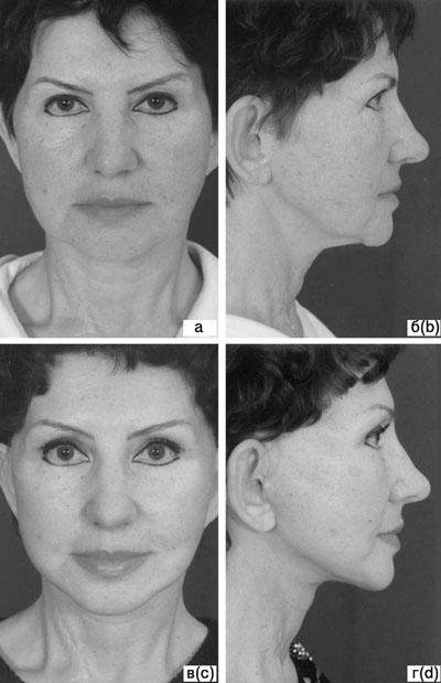 Субментальная пластика в ходе выполнения омолаживающих операций на лице. Рис.10