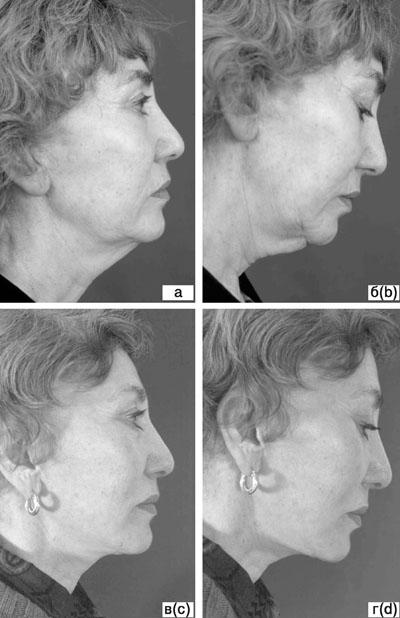 Субментальная пластика в ходе выполнения омолаживающих операций на лице. Рис.11