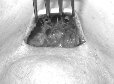 Субментальная пластика в ходе выполнения омолаживающих операций на лице. Рис.2
