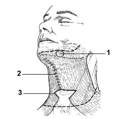 Субментальная пластика в ходе выполнения омолаживающих операций на лице. Рис.3