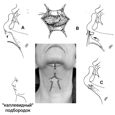 Субментальная пластика в ходе выполнения омолаживающих операций на лице. Рис.4