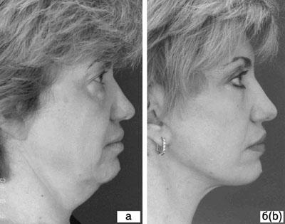 Субментальная пластика в ходе выполнения омолаживающих операций на лице. Рис.5