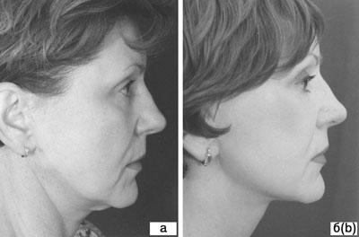 Субментальная пластика в ходе выполнения омолаживающих операций на лице. Рис.6