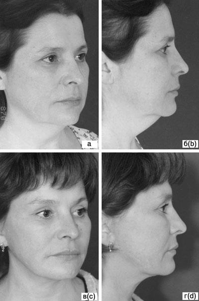 Субментальная пластика в ходе выполнения омолаживающих операций на лице. Рис.8