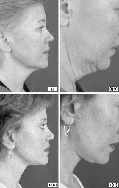 Субментальная пластика в ходе выполнения омолаживающих операций на лице. Рис.9